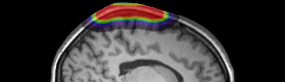 Diffuse Optical Imaging Workshop