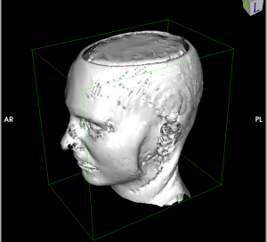 3D surface rendering in Osirix without editing